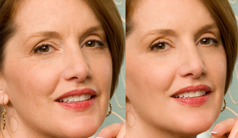 Aging Photo Gallery Natural Anti Aging Miami Prp Platelet Rich
